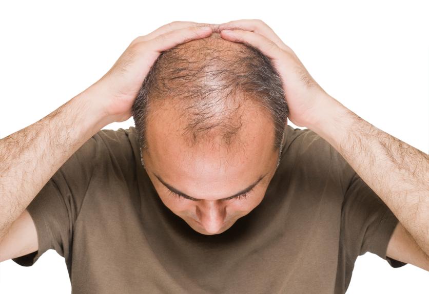 جدیدترین روش درمان ریزش مو