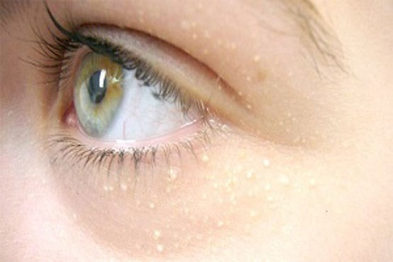 درمان دانههای سفید اطراف چشم