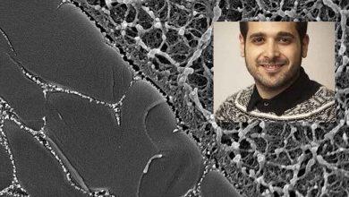 غضروف مصنوعی توسط محقق ایرانی تولید شد